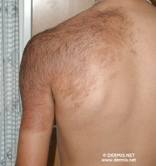 localisation: shoulder region diagnosis: Becker's Nevus