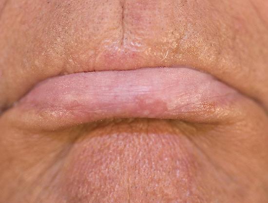 actinic cheilitis lip #11