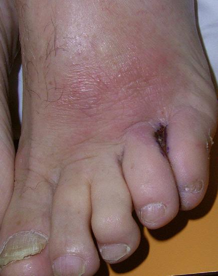Tinea pedis gram stain virus