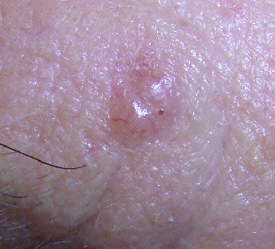 localisation: forehead diagnosis: Basal Cell Carcinoma