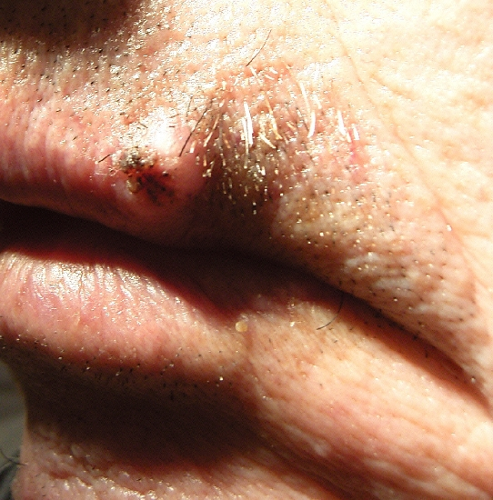 localisation: upper lip diagnosis: Squamous Cell Carcinoma Nevocytic Nevus