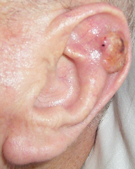 localisation: auricle diagnosis: Squamous Cell Carcinoma