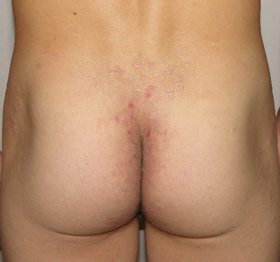 localisation: sacral region diagnosis: Dermatitis Herpetiformis Duhring