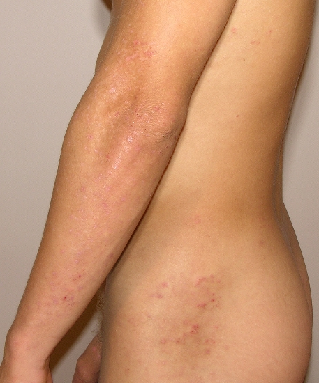 localisation: flank arms diagnosis: Dermatitis Herpetiformis Duhring