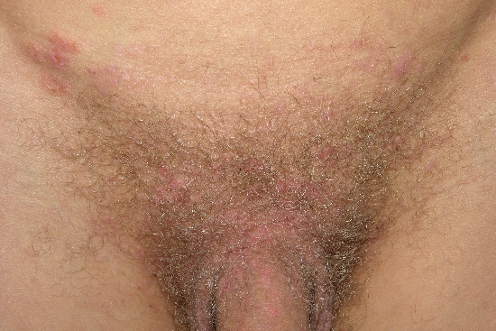 localisation: lower abdomen diagnosis: Dermatitis Herpetiformis Duhring