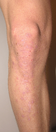 localisation: knee lower leg diagnosis: Dermatitis Herpetiformis Duhring