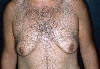 localisation: chest, diagnosis: Gynecomastia