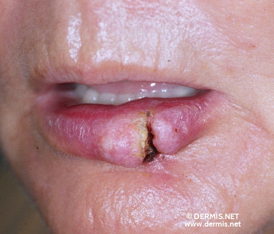 localisation: lower lip diagnosis: Carcinoma of Lip