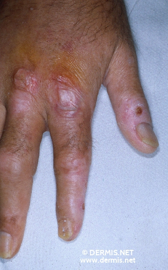localisation: back of the hands diagnosis: Congenital Erythropoietic Porphyria