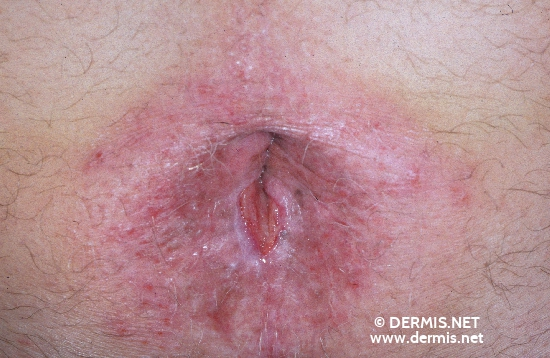 localisation: peri-anal  region diagnosis: Bowen's Disease