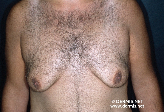 localisation: chest diagnosis: Gynecomastia