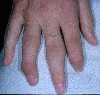 localisation: finger, diagnosis: Psoriasis Arthropathica