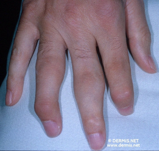 localisation: finger diagnosis: Psoriasis Arthropathica