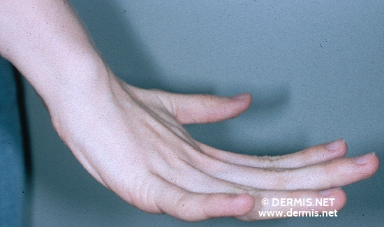 localisation: hands diagnosis: Ehlers-Danlos Syndrome