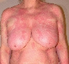localisation: chest, diagnosis: Erythema Annulare Centrifugum Darier