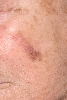 localisation: cheek, diagnosis: Lentigo Maligna Melanoma (LMM)