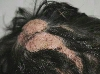 localisation: scalp, diagnosis: Feuerstein-Mims-Schimmelpenning Syndrome, Nevus Sebaceous of Jadassohn