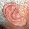 localisation: ear, diagnosis: Relapsing Polychondritis