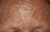 localisation: forehead, diagnosis: Sterile Eosinophilc Pustulosis