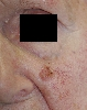 localisation: cheek, diagnosis: Squamous Cell Carcinoma
