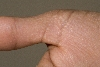 localisation: digital metacarpo-phalangeal joint, diagnosis: Acrokeratoelastoidosis Costa