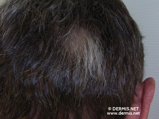 localisation: scalp diagnosis: Poliosis Circumscripta