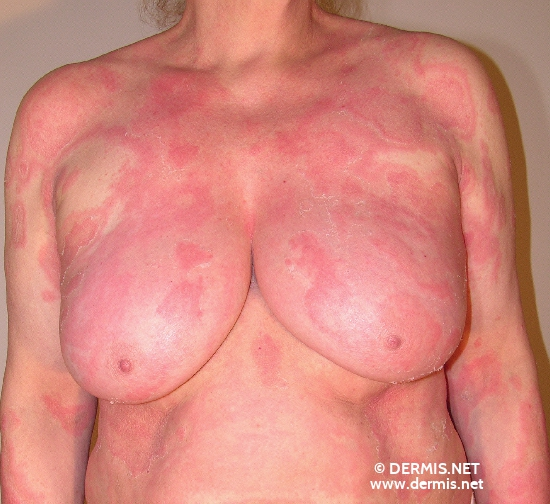 localisation: chest diagnosis: Erythema Annulare Centrifugum Darier