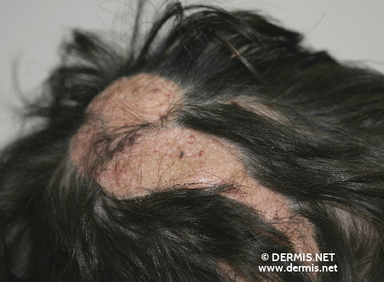 localisation: scalp diagnosis: Feuerstein-Mims-Schimmelpenning Syndrome Nevus Sebaceous of Jadassohn