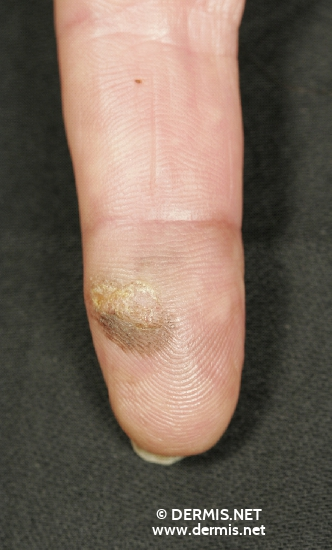 localisation: tip of the finger diagnosis: Acrolentiginous Melanoma (ALM)