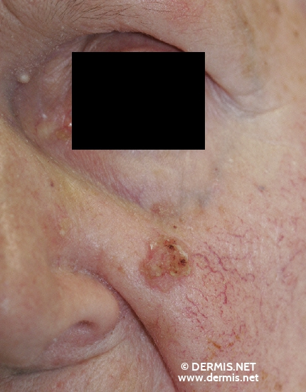 localisation: cheek diagnosis: Squamous Cell Carcinoma