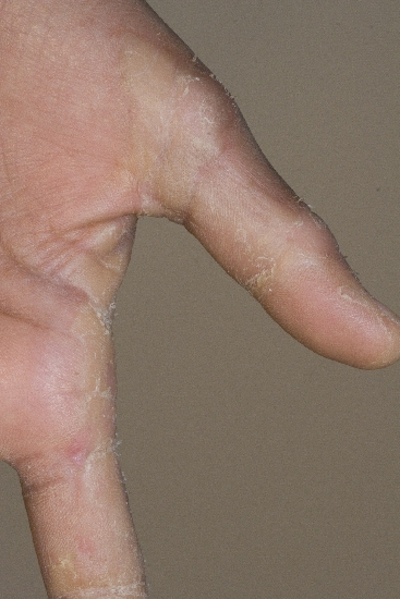 localisation: Finger Diagnose: Keratosis palmoplantaris
