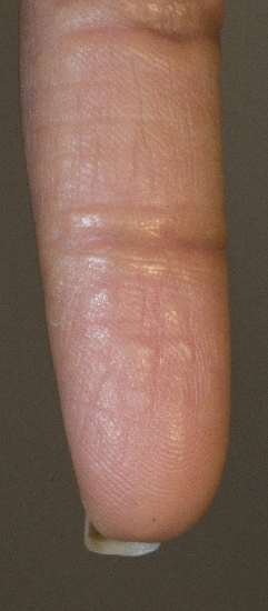 localisation: finger diagnosis: Acrokeratoelastoidosis Costa