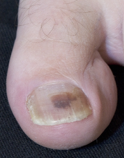 localisation: subungual (toe nail) diagnosis: Hematoma