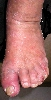 localisation: feet, diagnosis: Acute Irritant Contact Dermatitis