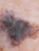 localisation: lower arms, diagnosis: Superficial Spreading Melanoma (SSM)