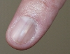 localisation: fingernail, diagnosis: Melanonychia Striata