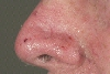 localisation: tip of the nose, diagnosis: Squamous Cell Carcinoma