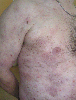 localisation: flank, diagnosis: Mycosis Fungoides