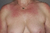 localisation: decolleté, shoulder region, diagnosis: Dermatomyositis