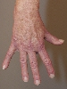 localisation: back of the hands, finger, diagnosis: Dermatomyositis