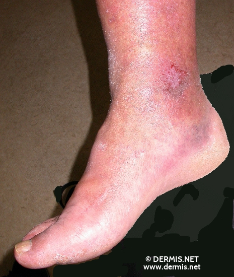 localisation: ankle joint diagnosis: Acute Irritant Contact Dermatitis