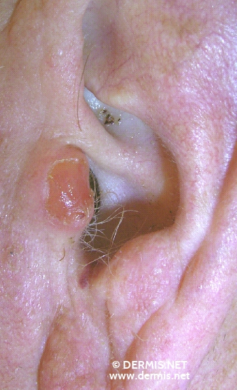 localisation: tragus diagnosis: Squamous Cell Carcinoma