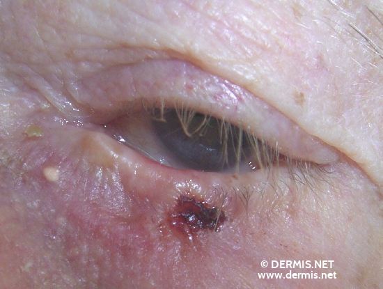 localisation: lower eyelid diagnosis: Basal Cell Carcinoma