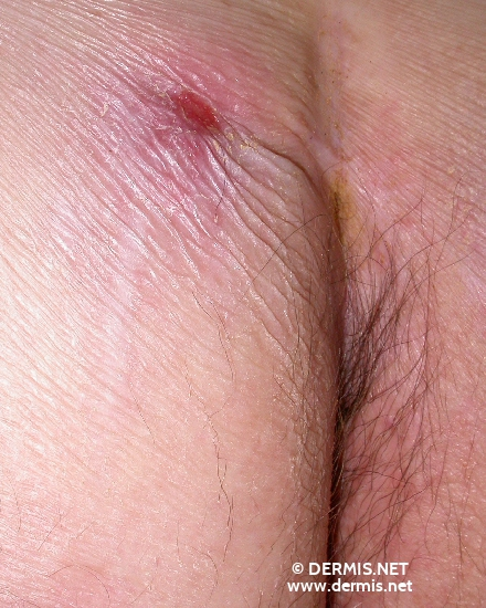 localisation: gluteal diagnosis: Squamous Cell Carcinoma