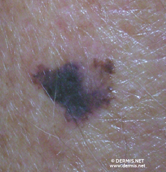 localisation: lower arms diagnosis: Superficial Spreading Melanoma (SSM)