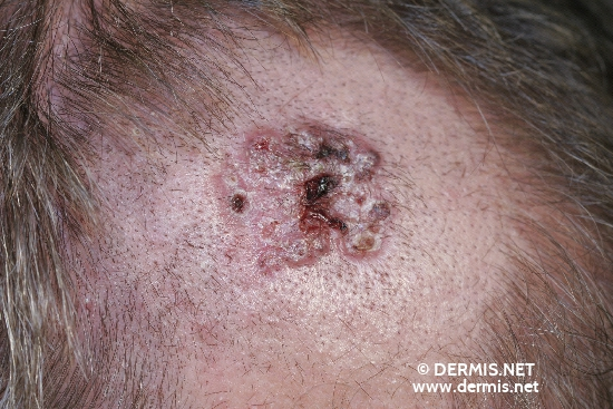 localisation: scalp diagnosis: Basal Cell Carcinoma