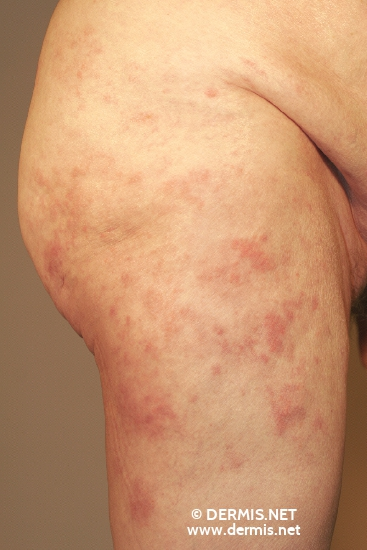 localisation: upper leg diagnosis: Mycosis Fungoides