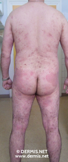 localisation: trunk legs diagnosis: Mycosis Fungoides