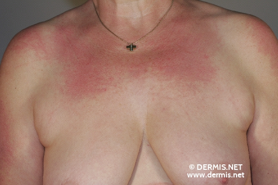 localisation: decolleté shoulder region diagnosis: Dermatomyositis