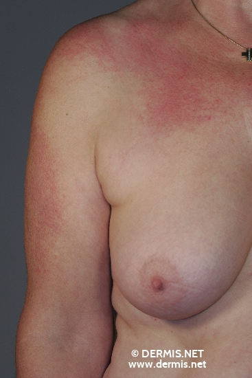 localisation: upper arms decolleté diagnosis: Dermatomyositis